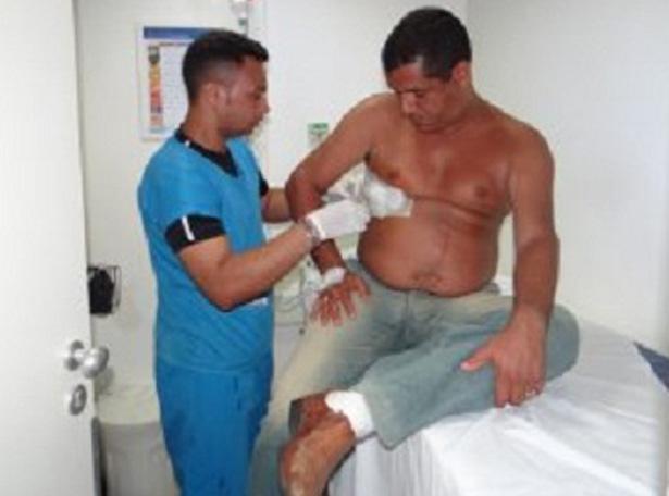 Policial civil é atingido por tiro de raspão em Feira de Santana