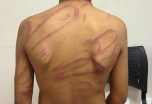 Pai espanca e tortura filho por ser gay