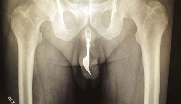 Idoso passa por cirurgia após introduzir garfo no pênis em ato sexual