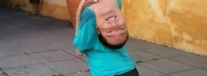Baiano que nasceu com a cabeça virada para trás dá palestras motivacionais