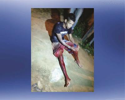Jovem foi baleado no dia 17 de junho.(Giro em Ipiaú)