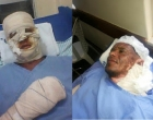 Dois homens sofrem queimaduras de 2º grau ao tentar acender churrasqueira em Jitaúna