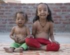 Doença rara faz irmãos indianos parecerem idosos