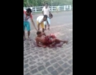 Camamu: Jovem sofre acidente na BA 001 próximo ao Acaraí
