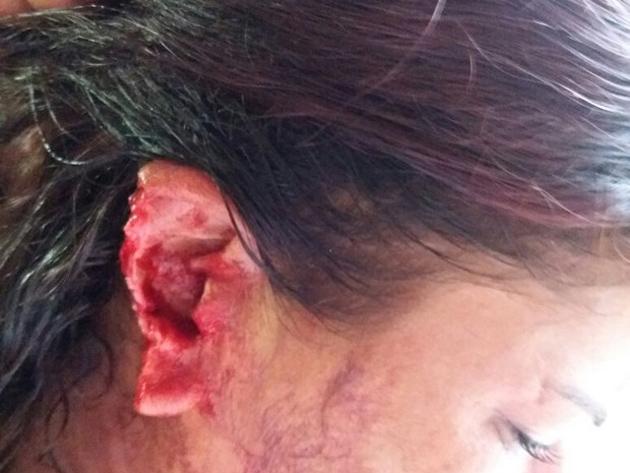 Segundo o G1 Tocantins, as mulheres brigaram depois que a vítima, de 26 anos, provocou a esposa do amante, de 37 anos.