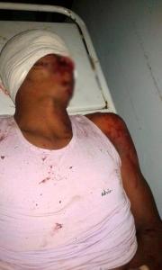 Marau: Acidente na BR 030 deixa uma vítima fatal e outro gravemente ferido