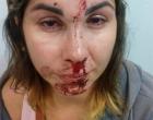 Mulher é agredida pelo esposo e filho denuncia violência em rede social