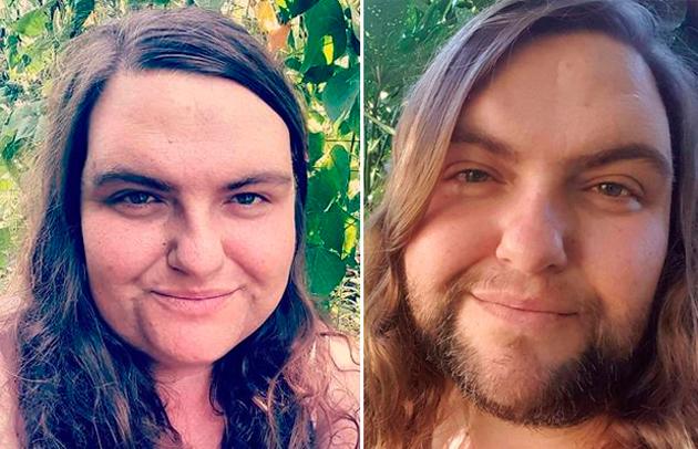 Americana desiste de lutar contra pelos e assume barba: 'Incrível'