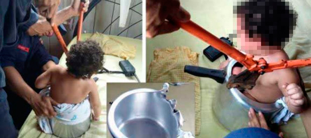 Brasil: Bebê de 1 ano fica presa em panela de pressão