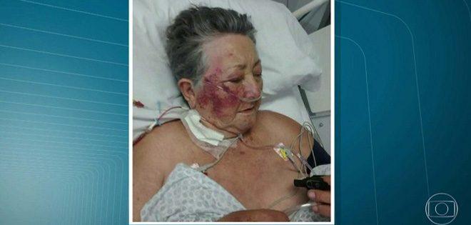 Idosa é espancada por enfermeiro dentro de UTI de hospital de São Paulo