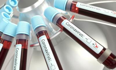 Ipiaú: Mais três pacientes testam positivo para covid-19