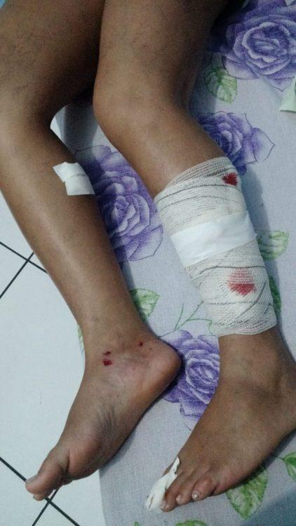 A vítima teve ferimentos nas duas pernas