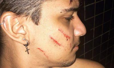 Jovem divulga agressão nas redes sociais e afirma que foi vítima de ataque homofóbico por vizinha na BA: 'Muito injusto'